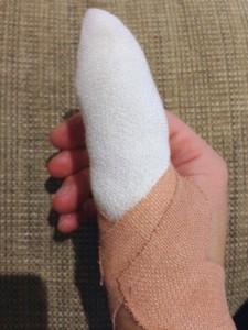 Poorly thumb